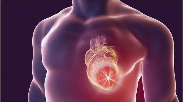 رسم توضيحي لنوبة قلبية