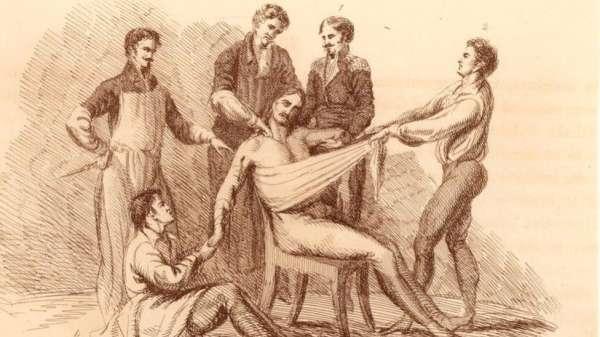 في فترة ما قبل ابتكار عقاقير التخدير، كان يتعين تقييد حركة المرضى خلال خضوعهم للجراحة، ، نظرا لأنهم كان يشعرون جراء ذلك بآلام مبرحة